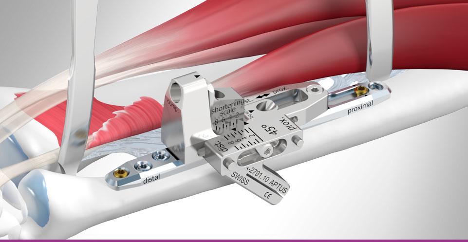 Medartis - Wrist Plating System - APTUS Ulna Shortening System 2.5