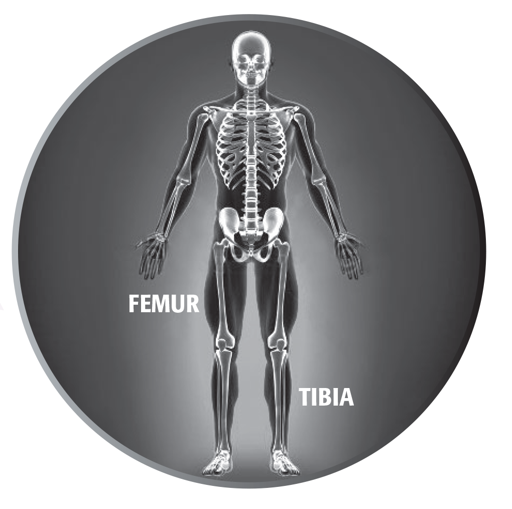 Precice Femur And Tibia Limb Lengthening Ortho Max