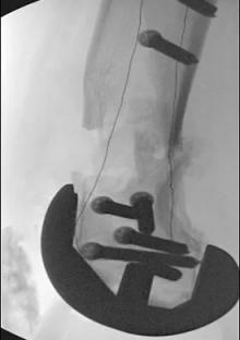 "CarboFix ""Piccolo"" Distal Femur Plates - X-Ray"