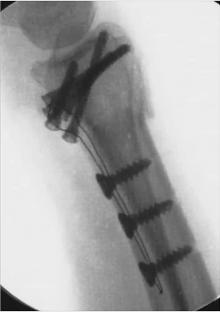 "CarboFix ""Piccolo"" Distal Radius Plate - X-Ray 1"