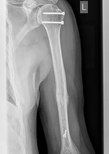 "CarboFix ""Piccolo"" Humerus Nails - X-Ray 2"
