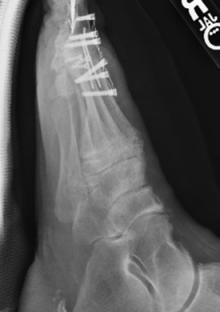 "CarboFix ""Piccolo"" MTP Fusion Plates - X-Ray"