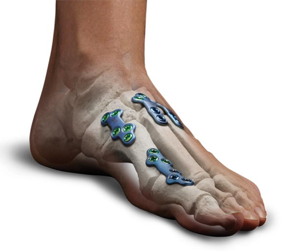 new-foot-plate-800x712