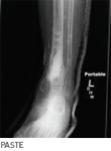 X-Ray Osteomyelitis caused by Group B streptococcus and MRSA - STIMULAN