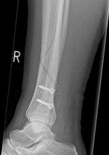 Tibia Nail X-Ray 1 - CarboFix
