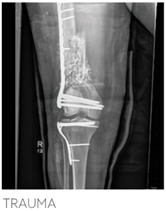 X-Ray Bilateral high energy femoral fractures
