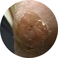 14 DAYS AFTER TREATMENT
