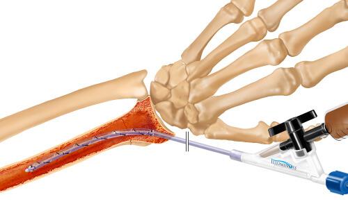 IlluminOss System, Osteoporotic & Pathologic Fracture Repair