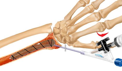 IlluminOss System, Osteoporotic & Pathologic Fracture Repair Figure 2
