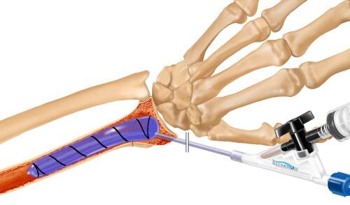 IlluminOss System, Osteoporotic & Pathologic Fracture Repair Figure 3