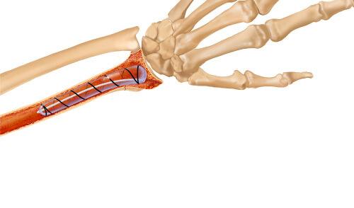 IlluminOss System, Osteoporotic & Pathologic Fracture Repair Figure 4