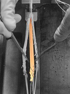 Knee Solutions, Artelon Flexband