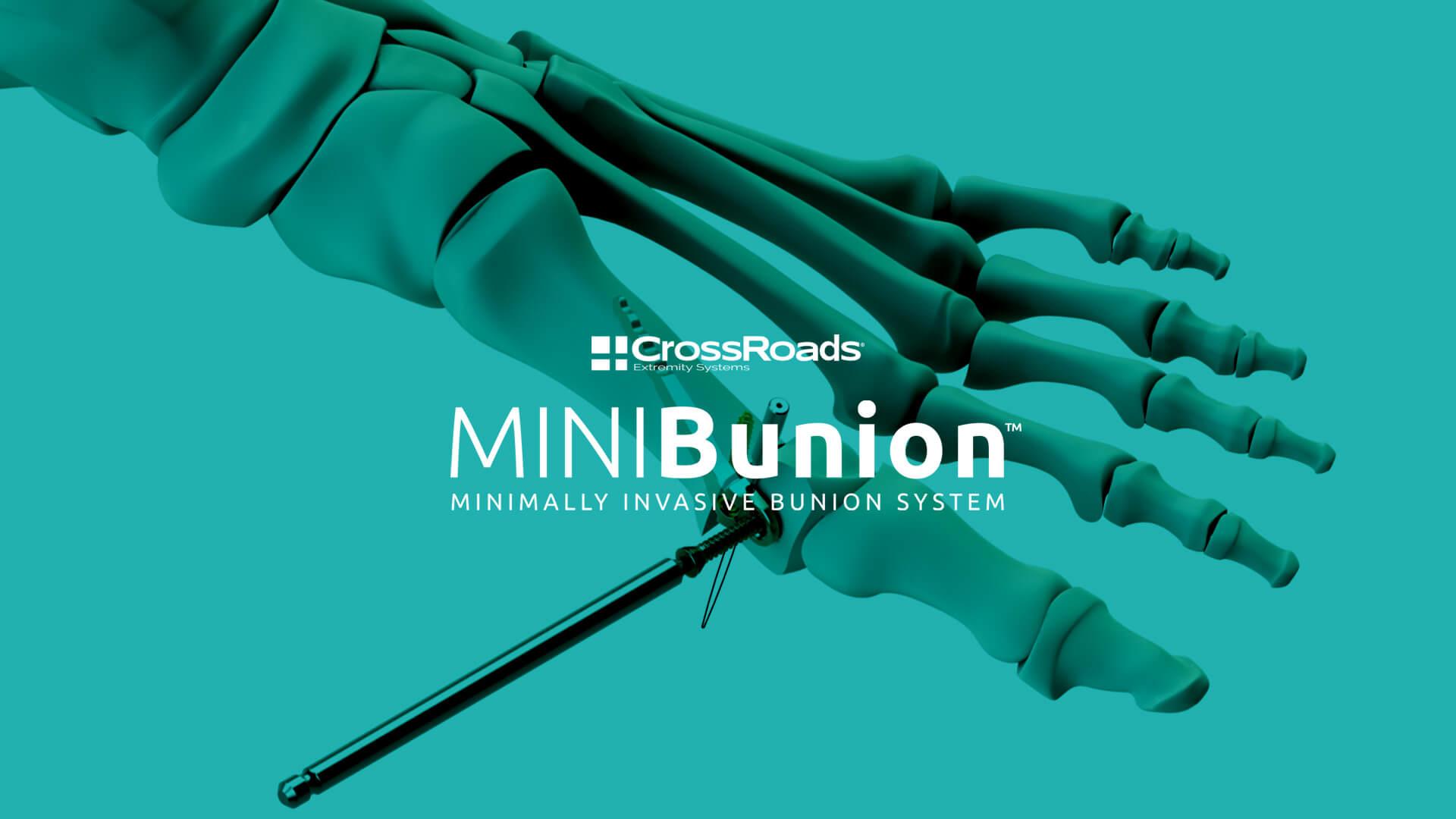 CrossRoads MINIBunion Minimally Invasive Bunion System