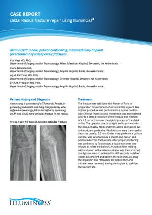 Case Report Distal Radius fracture repair using IlluminOss