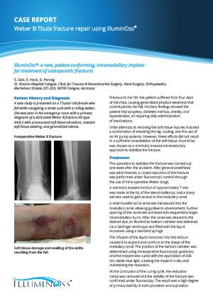 Case Report Fibula Fracture Repair using IlluminOss