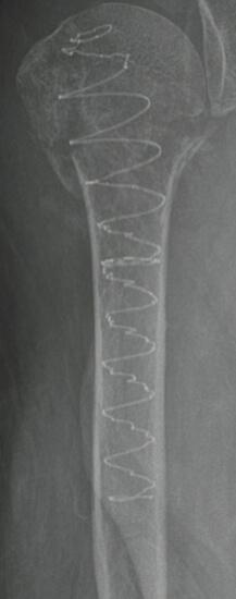30 days Post-Op, Proximal Humerus radiograph