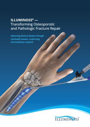 IlluminOss Sales Brochure